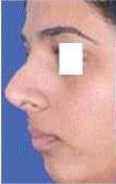 Rhinoplasty Surgery in Kolkata
