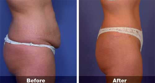 Abdominoplasty Surgery in Kolkata